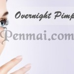 Quick Overnight Pimple Treatment